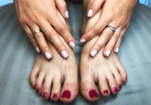 Nemen van de Valgorect voeten met eeltknobbels